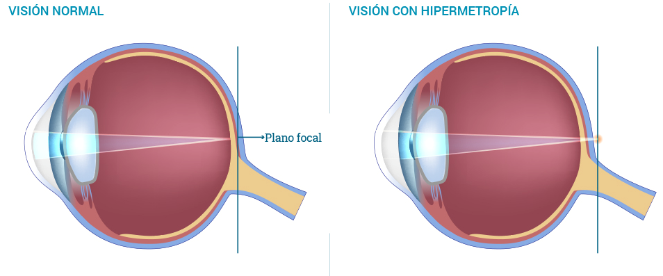 hipermiopia